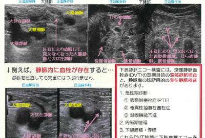 下肢血管エコー検査②について【LAB LETTER No.104】